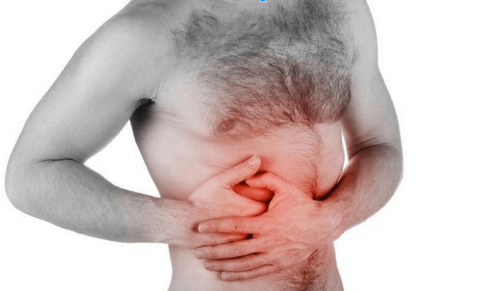 Tumor Intestinal