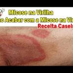 Micose na Virilha | Receita Caseira