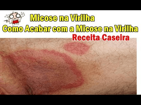 Micose na Virilha Receita Caseira