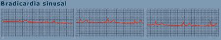 biocardia sinusal